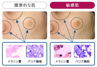 敏感肌がシミができやすい理由と原因